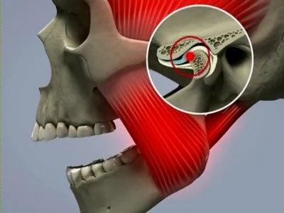 Почему хрустит челюсть когда открываешь рот как лечить
